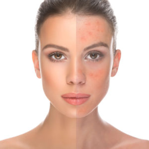 Acne - Dermatite Rosacea